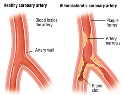 diseases that affect the circulatory system